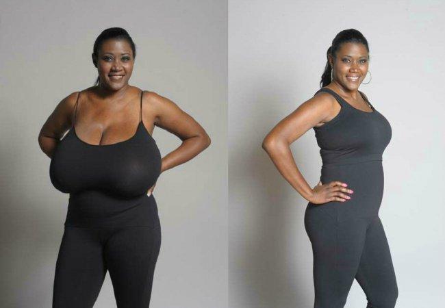Perdre du poids apres reduction mammaire